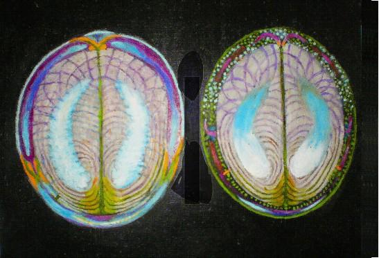 Hjärnor1